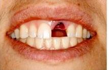 Best implantologist for dental implants in Delhi